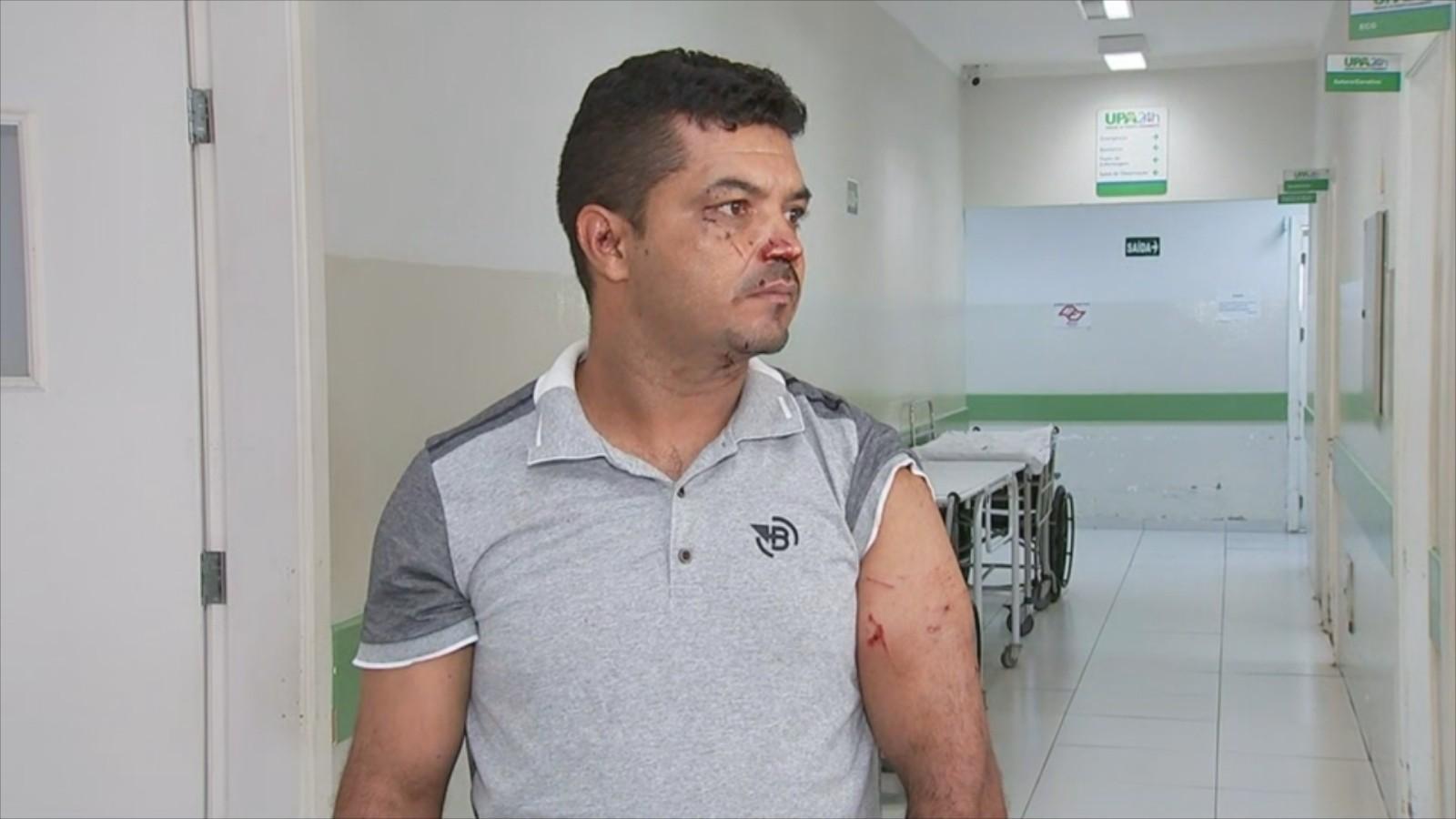 Ajudante de motorista relata ataque de pit bulls em Fernandópolis: 'Comecei a perder as forças'