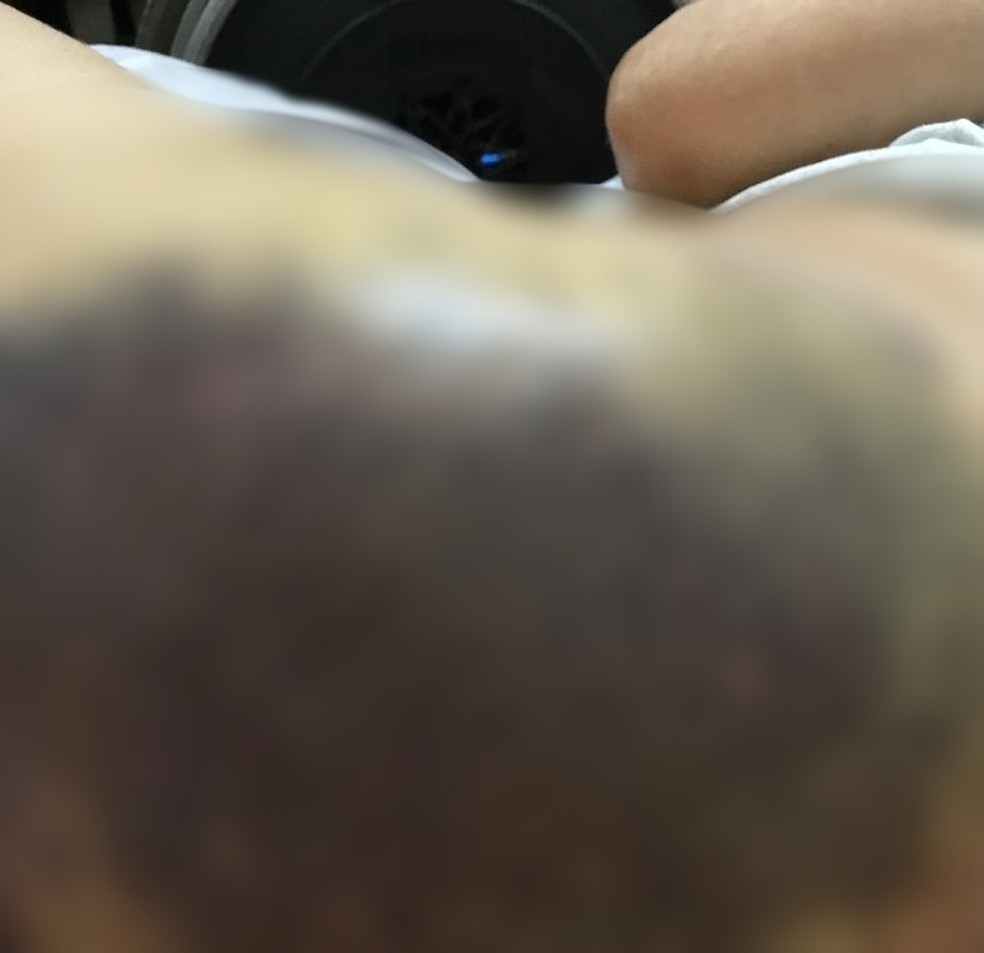 Idosa ficou com a lateral do corpo cheia de hematomas e teve uma fratura na bacia — Foto: Arquivo Pessoal