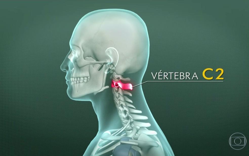 Jackson Follmann vai fazer tratamento na vértebra C2 da coluna cervical (Foto: TV Globo/Reprodução)