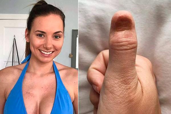 Karolina Jasko e a lesão em seu dedão (Foto: Reprodução Facebook)