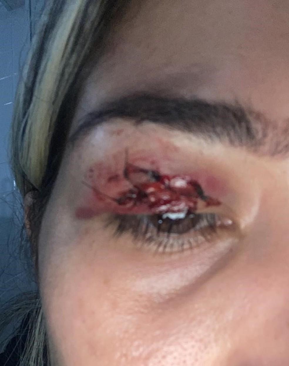 Vítima precisou levar pontos na pálpebra após agressão em Praia Grande, SP — Foto: Arquivo pessoal