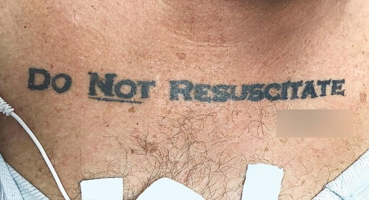 """Tatuagem de """"do not resuscitate"""" (não reanimar) em paciente inconsciente"""