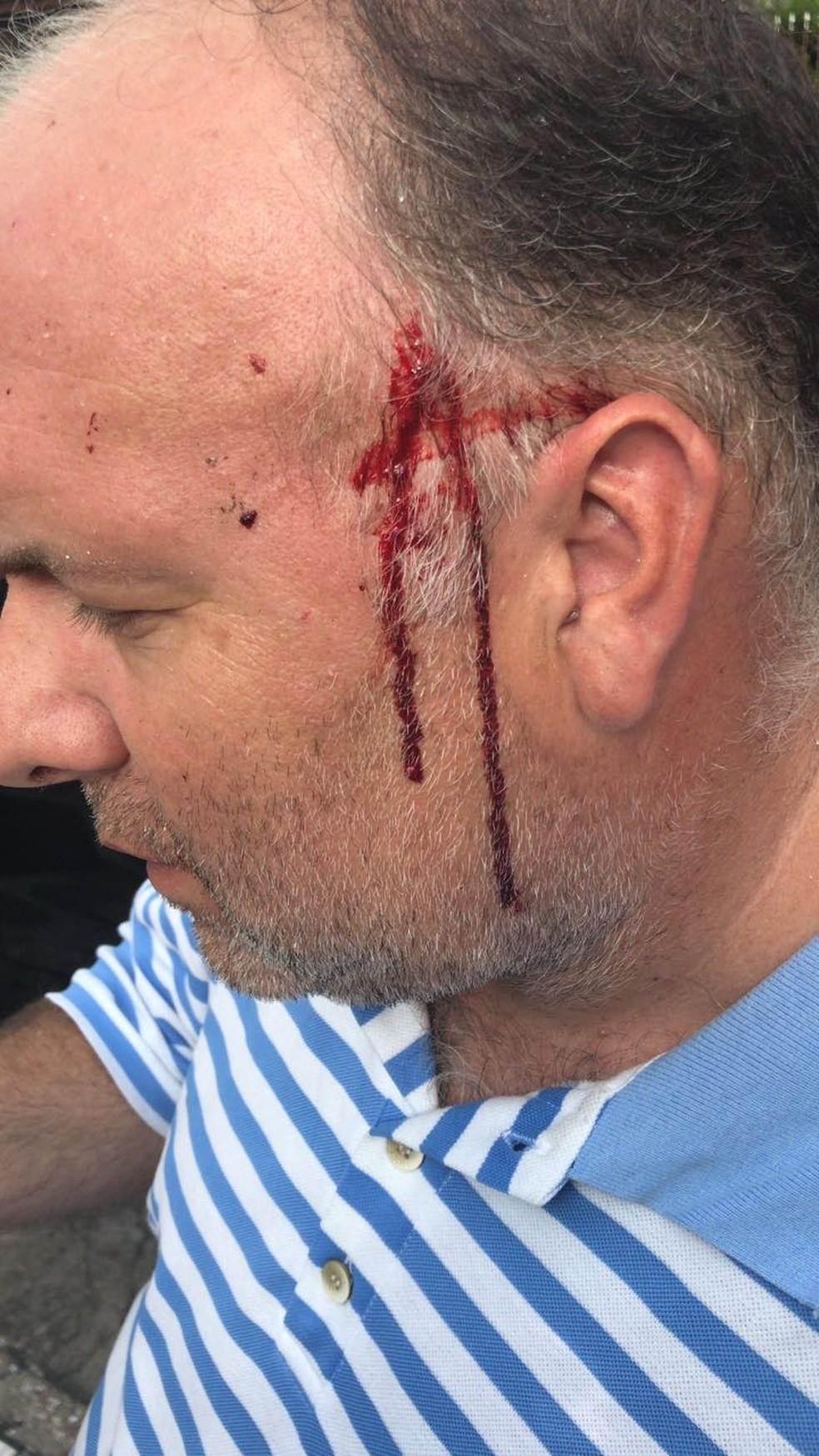 Motorista ficou ferido após levar pedrada na cabeça (Foto: Fabio Bandeira/Arquivo Pessoal)