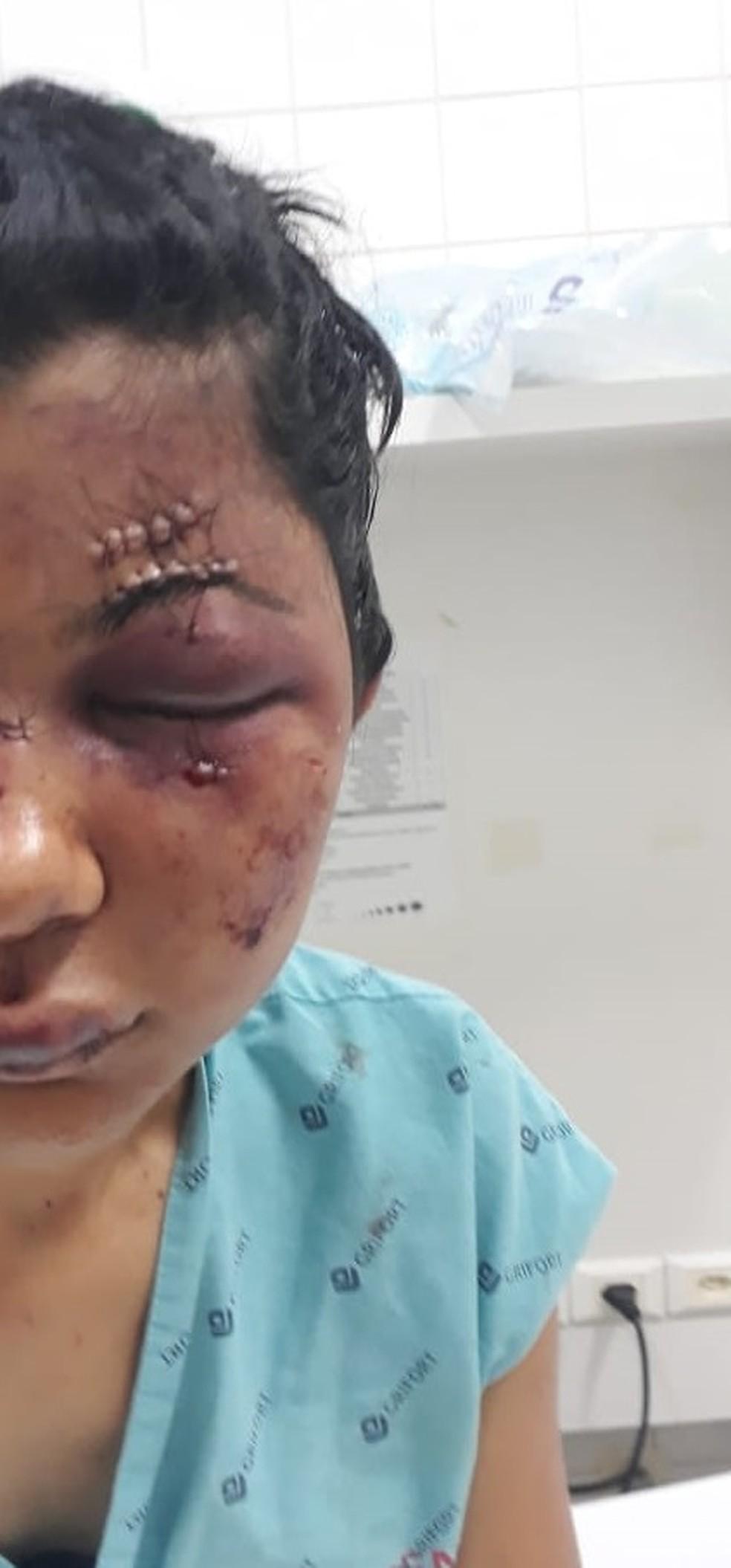 Jovem de 18 anos foi agredida pelo marido em MT — Foto: Divulgação