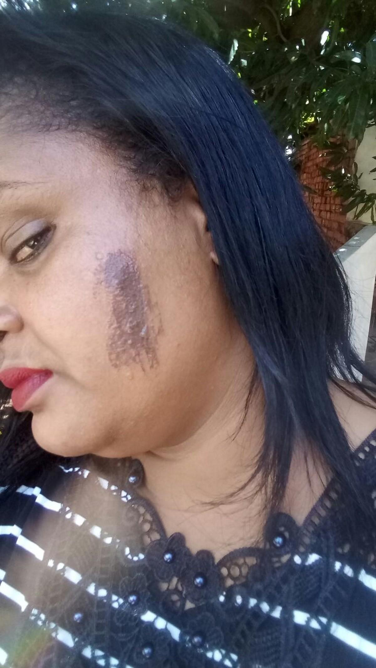 Cuidadora de idosos tem rosto queimado e seio cortado ao ser torturada durante assalto