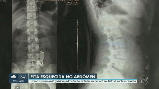 Gravidez adia retirada de fita que está há quatro anos na barriga de jovem de Capivari
