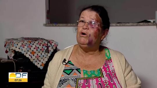 Idosa de 63 anos é arrastada por carro em Taguatinga