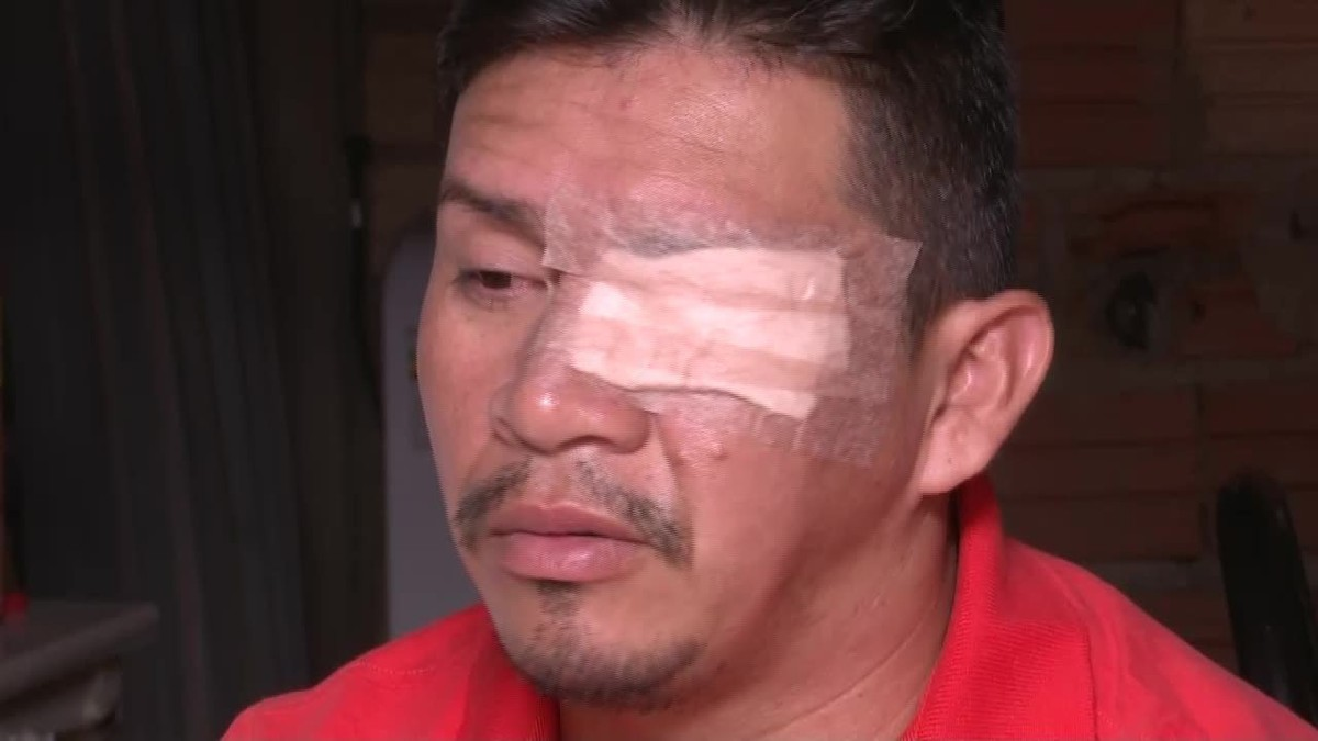 Cantor atacado com produto químico durante assalto em Boa Vista corre risco de ficar cego de um olho