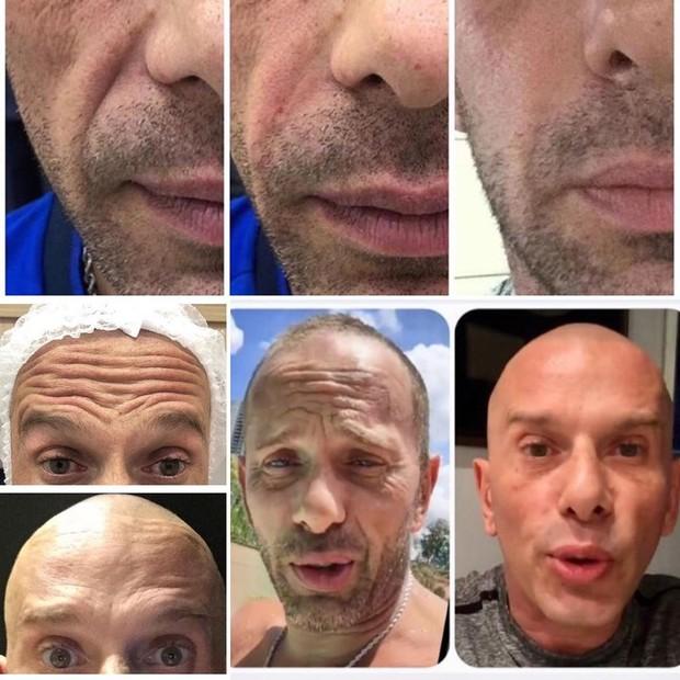 Antes e depois de Rafael Ilha após procedimentos estéticos (Foto: Reprodução/Instagram)