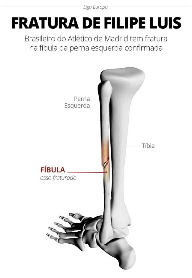 info-fratura-filipe-luis_b.jpg