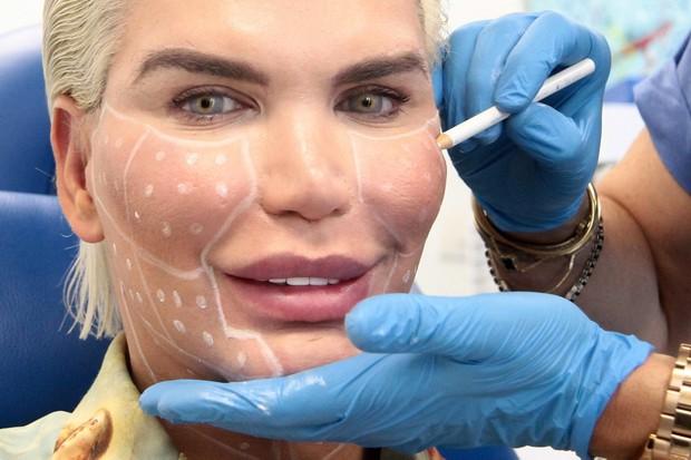 Ken Humano se prepara para sua 60ª cirurgia (Foto: The Grosby Group)