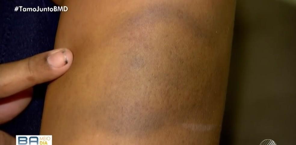 Vítima ainda tem marcas de agressão pelo corpo — Foto: Reprodução/ TV Bahia
