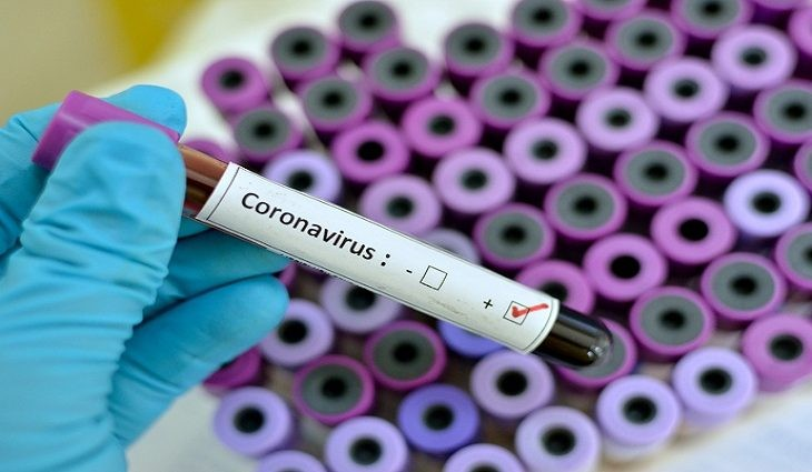 MS registra 1.060 casos novos e mais 23 mortes por Covid-19