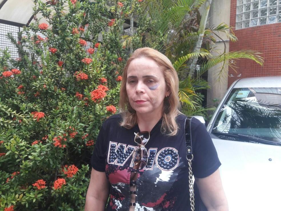 Alex Sandra acusa ex-namorado, o humorista Renato Fechine, de agressão física (Foto: Alan Oliveira/ G1)