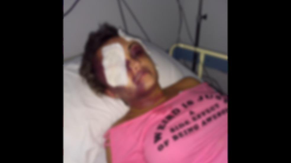 Vítima agredida pelo namorado teve lesões graves em Caraguatatuba (Foto: Arquivo pessoal )