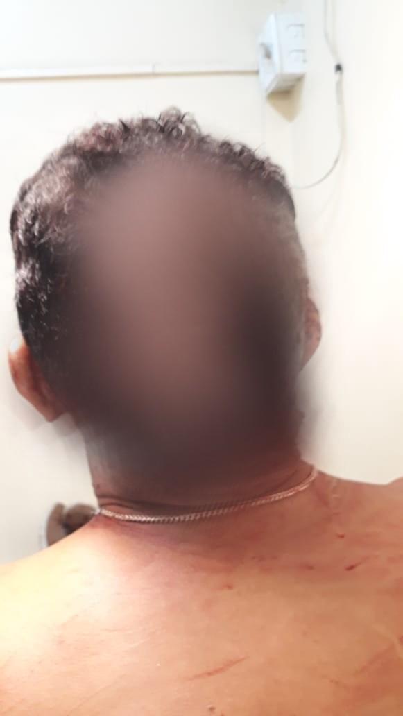Homem é ferido com terçado na cabeça pelo ex-cunhado no Benguí, em Belém