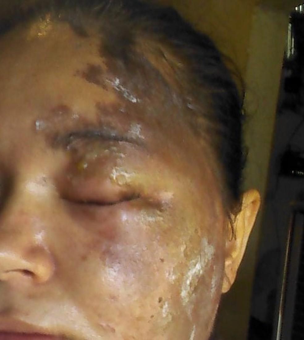 Bruna estava próximo de casa quando foi atacada pelo homem. — Foto: Arquivo pessoal