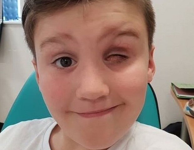Menino que perdeu o olho com arma de brinquedo (Foto: Divulgação)