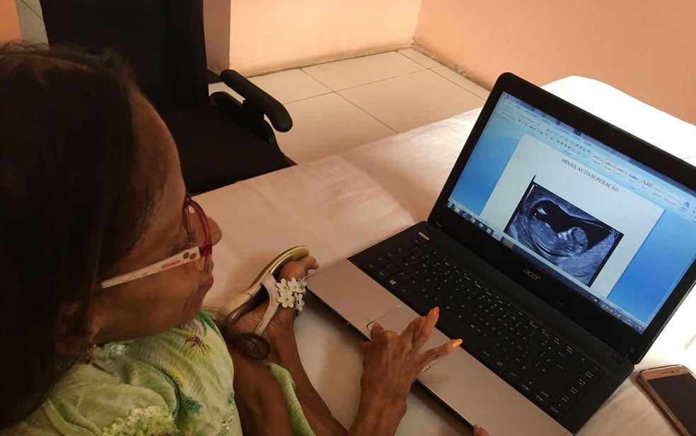 Glady escreveu livro que conta história de superação da síndrome (Foto: Juliana Almirante/ G1)