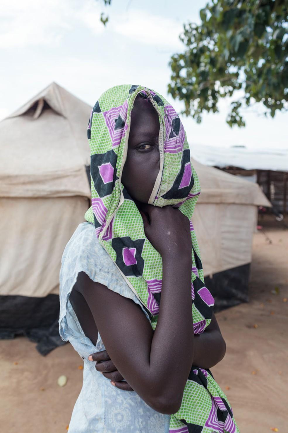 O fotógrafo brasileiro Bruno Feder quer levar Amoli, garota com queimaduras no rosto, para uma cirurgia de reconstrução do rosto em Uganda (Foto: Bruno Feder)