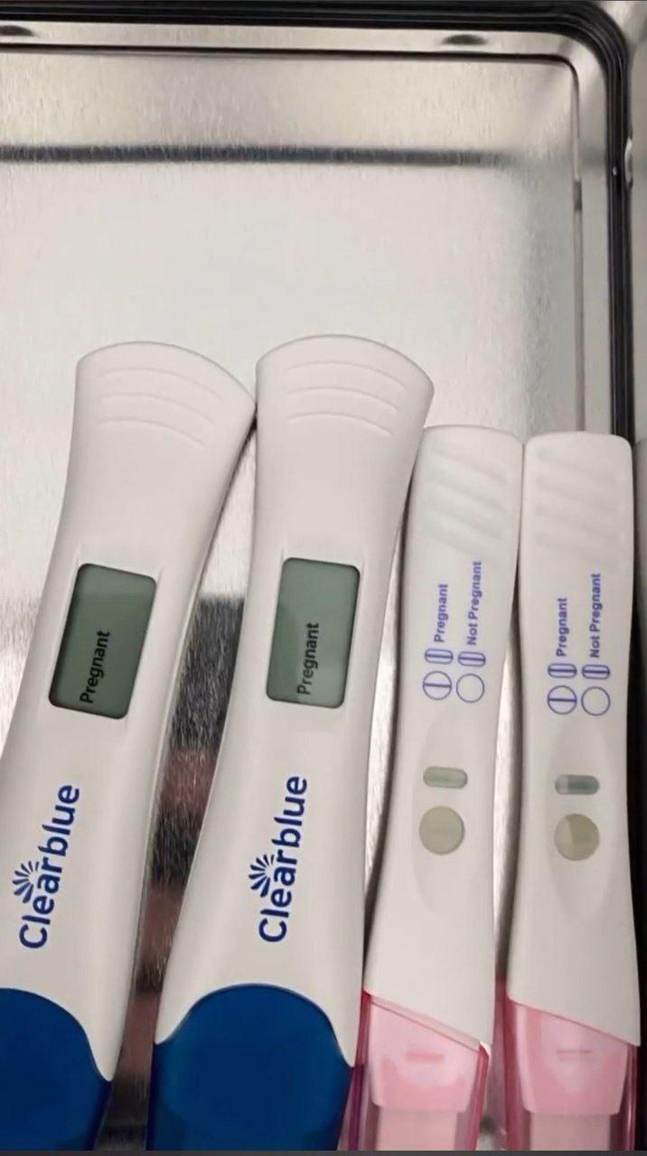 Exames de gravidez de Dani Bolina (Foto: Reprodução/Instagram)
