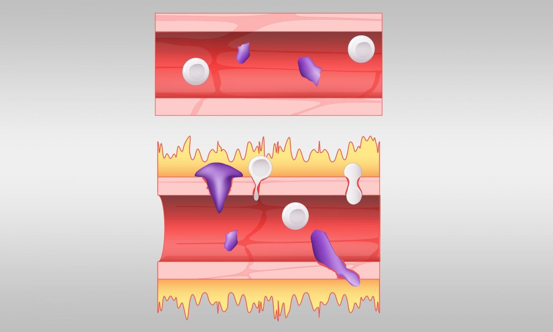 No topo da imagem, ilustração mostra como se comporta um vaso sanguíneo normal. Abaixo dele, ilustra-se os vazamentos provocados pelo excesso de bradicinina nos vasos (Foto: Jason Smith/ORNL, Departamento de Energia dos EUA)