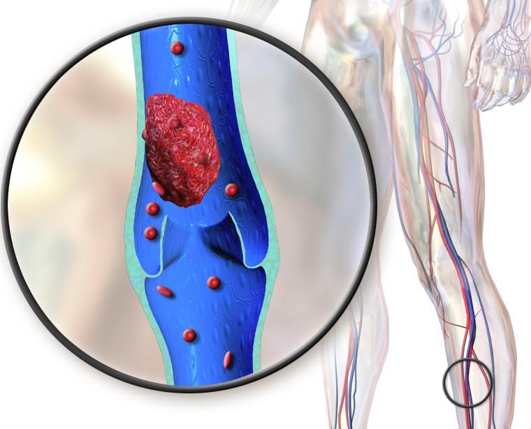 O que é trombose? 7 coisas para entender sobre a doença (Foto: Wikimedia Commons)