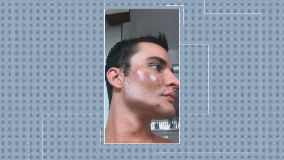 Outro ângulo que mostra efeito da bioplastia — Foto: Reprodução/TV Globo
