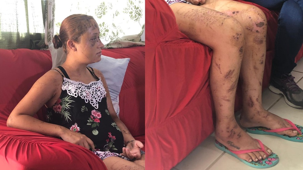 Paloma se recupera de hematomas em casa após quatro dias internada. — Foto: Carlos Amaral / G1Minas