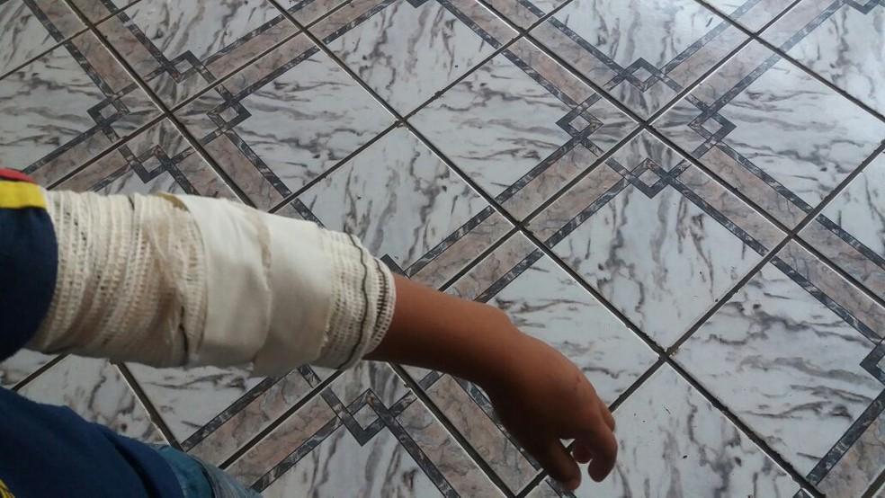 Ferimentos devem ser limpados diariamente durante 10 dias em Campo Grande, MS (Foto: Nathália Rabelo/G1 MS)