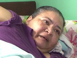 Mulher com elefantíase na BA não sai de casa há 3 anos e pede ajuda (Foto: Reprodução/TV Santa Cruz)