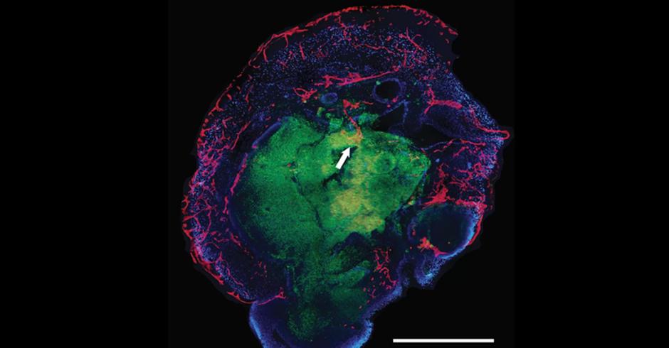 e8e73ac94 Cientistas criam mini cérebros artificiais que se desenvolvem sozinhos