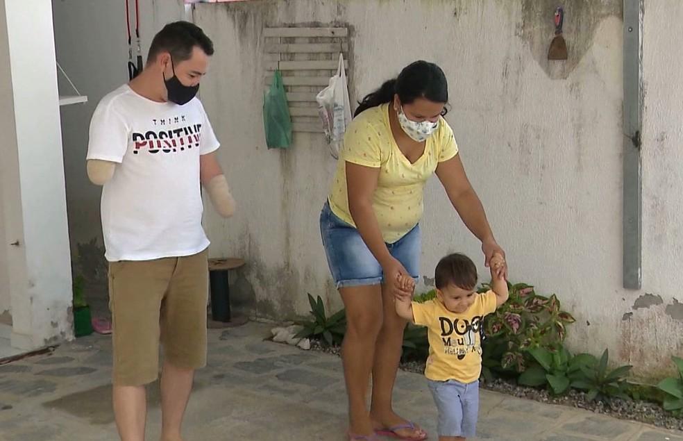 Pai perde os braços um dia antes do nascimento do filho, em Campina Grande — Foto: TV Paraíba/Reprodução