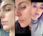 Em 2020, atrizes consideradas ícones de beleza mostraram que também sofrem de problemas na pele como acnes. Em publicações com o rosto sem maquiagem, elas discutiram autoaceitação e beleza irreal | Reprodução/Instagram