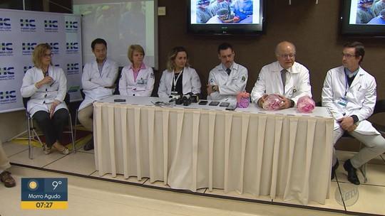 Médico do HC prevê 5ª etapa antes de separação total de irmãs siamesas unidas pela cabeça