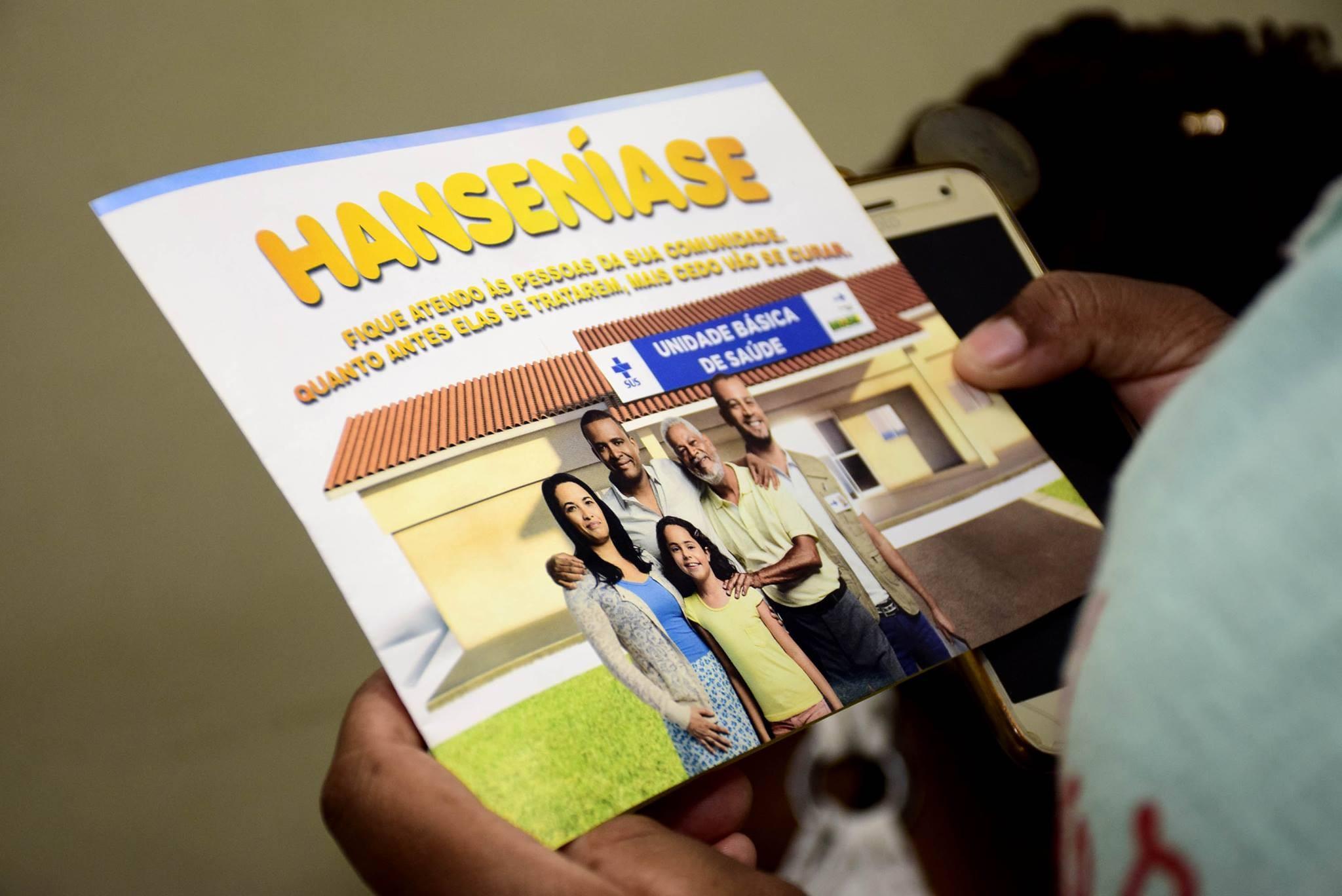 Pesquisadores brasileiros detectam hanseníase resistente ao tratamento padrão no Pará