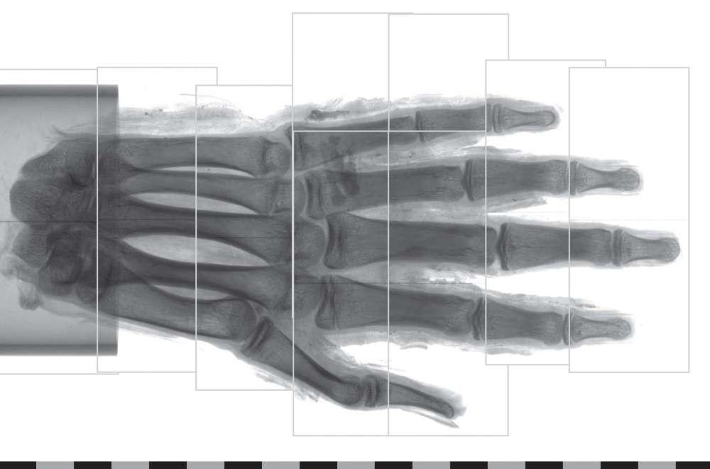 Múmia é analisada em laboratório sueco (Foto: Divulgação)