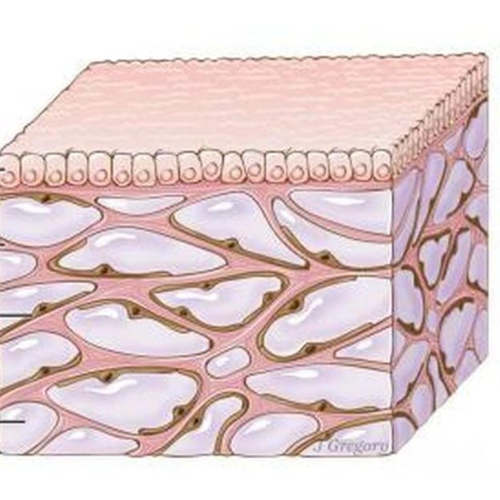A camada de cima é a mucosa; as partes rosas são as estruturas de colágeno que criam as cavidades cheias de fluído (representado pela cor lilás) (Foto: Jill Gregory/Mount Sinai Health System)