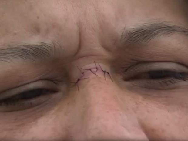 Michelle chegou a levar pontos no nariz ao ser atingida por linha cortante (Foto: Reprodução/TV TEM)