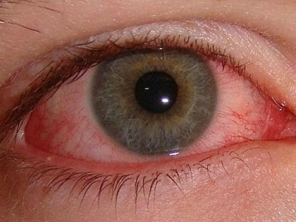 Tratamento indevido da conjutivite pode causar riscos e até perfurar a córnea, diz oftalmologista (Foto: Divulgação)