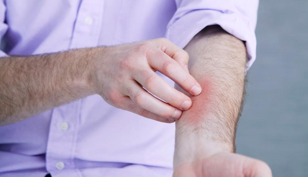 Um dos sintomas da doença é a forte coceira na pele — Foto: B. BOISSONNET / BSIP