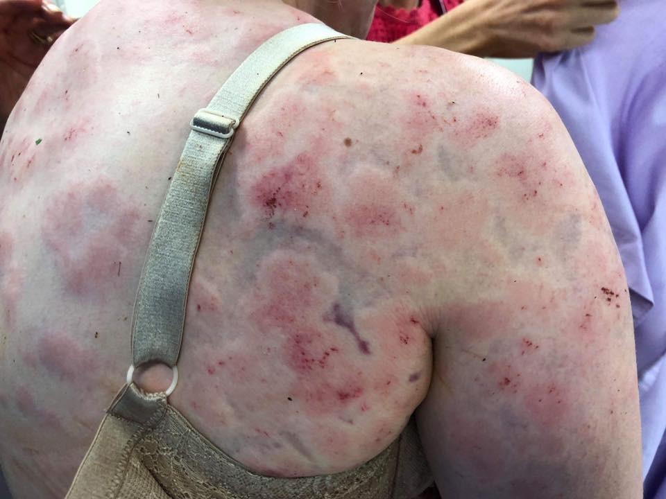 O corpo da mulher ficou cheio de hematomas e queimaduras. Ferimentos foram causados pelo gelo (Foto: Reprodução/ Facebook)