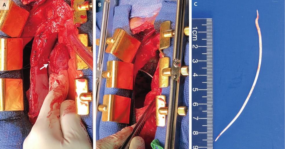 Homem estava com dor no peito e falta de ar após cirurgia para reparação de fratura — Foto: The New England Journal of Medicine