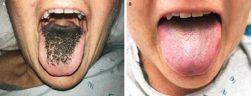 Paciente desenvolveu língua negra pilosa depois de tomar antibióticos (Foto: Ysair Hamad/The New England Journal of Medicine)
