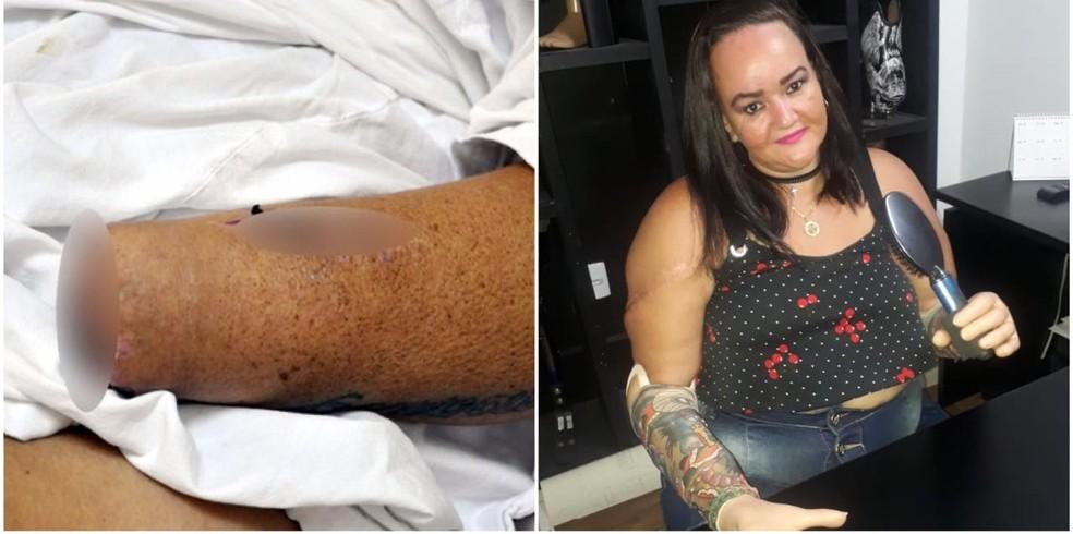 Ex-diarista teve as duas mãos decepadas e ganhou prótese 3 anos depois — Foto: Geisiane Buriola/Arquivo pessoal
