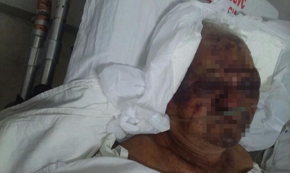 Idoso foi agredido a pedradas em assalto dentro de casa (Foto: Claudia de Brito Ribeiro/ Arquivo Pessoal)