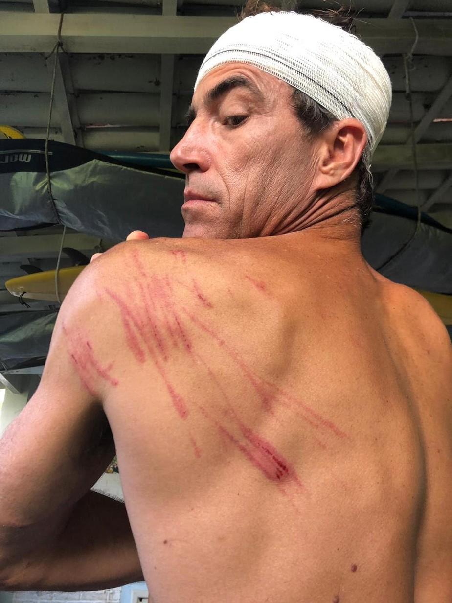 Carlos Burle toma vaca em expedição na Ilha Mãe e perde os sentidos: