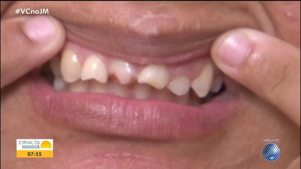Mulher teve os dentes cortados com alicate — Foto: Reprodução / TV Bahia