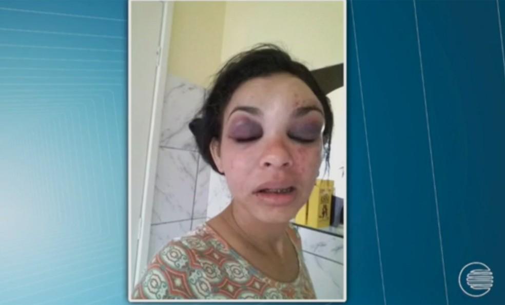 Mulher sofre pancadas no rosto e tem os olhos inxados.  (Foto: Arquivo pessoal)