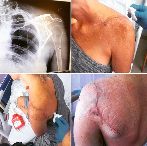 A dublê Olivia Jackson mostrando as lesões decorrentes do acidente no set de Resident Evil (Foto: Instagram)